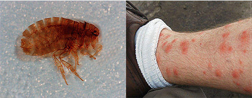 укусы песчаных блох